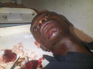 Fredo Attipou dans la salle d'opération  médicale