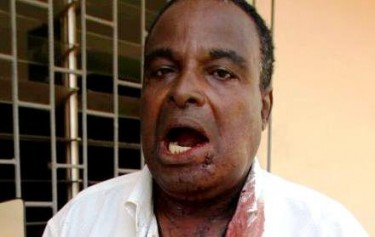 Younglove Agbéboua Amavi, Secrétaire général du SAINJOP après sa blessure par les forces de l'ordre. Photo afreepress.info